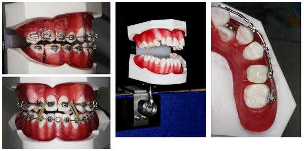 先天欠如・大臼歯の近心傾斜・埋伏歯を治療するブラケット治療コース