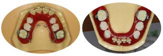 混合歯列期の拡大装置