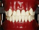 Ⅲ級前歯部反対咬合